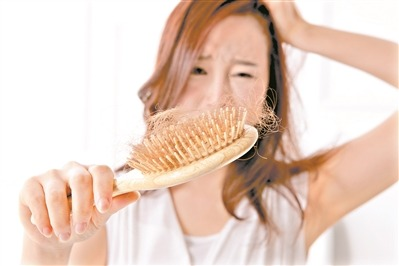 """""""Hair loss"""" becomes new buzzword among young Chinese - Chinadaily.com.cn"""