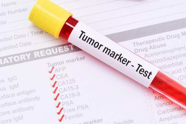 Chinese Researchers Develop New Method For Detecting Tumor Markers