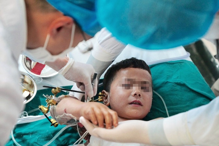 Dozens of people work together to save boy's badly damaged arm